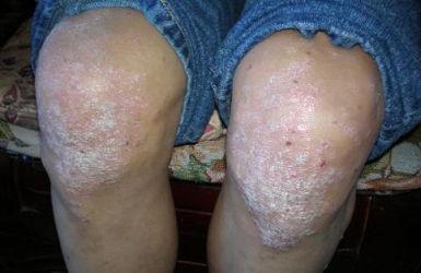 关节型银屑病的伤害